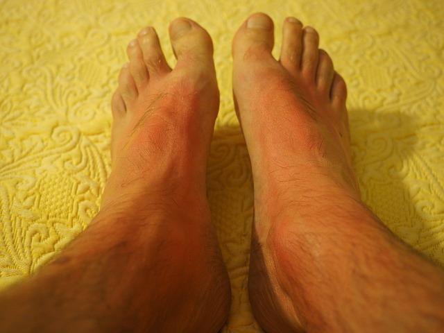 skóra alergiczna