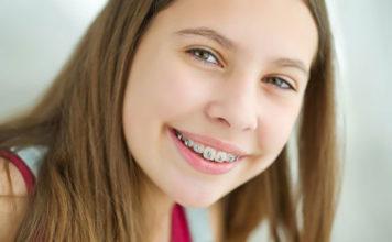 Dziecko z aparatem ortodontycznym