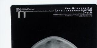Wykonywanie zdjęć rentgenowskich w gabinecie stomatologicznym